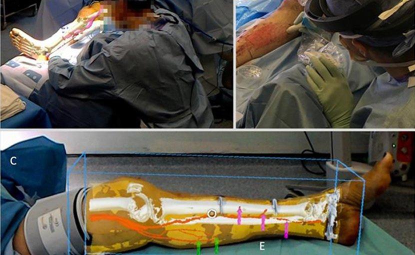 This is the surgeon's view. Credit 'Philip Pratt, et al. Eur Radiol Exp, 2018'