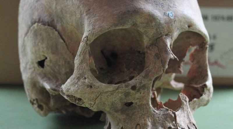 This is one of the female skulls from the Repton charnel. Credit Cat Jarman