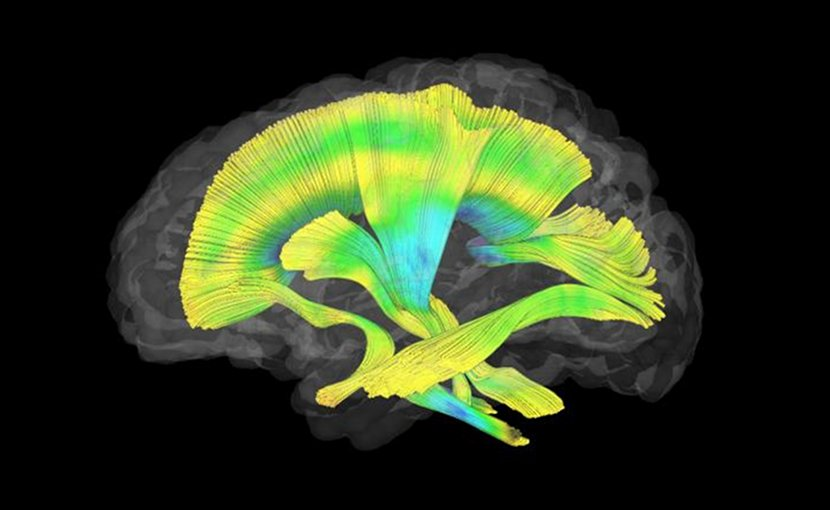 This image shows all of the white matter fiber tracts investigated in this study. Credit Meghan Swanson, PhD, UNC-Chapel Hill