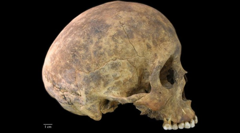 One of two cases of healed blows to the cranium from the Playa Venado excavations. Most of the evidence of violence was interpreted by Harvard archaeologist, Samuel Lothrop based on body positioning in graves at the site. Smithsonian post-doctoral fellow, Nicole Smith-Guzmán, found no examples of trauma that occurred near the time of death among the skeletons in the collection. Credit Nicole Smith-Guzmán, STRI