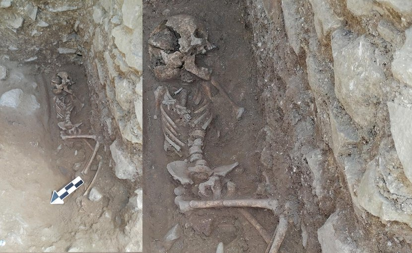 A 10-year-old was discovered lying on its side in a fifth-century Italian cemetery previously believed to be designated for babies, toddlers and unborn fetuses. Credit Photo courtesy of David Pickel/Stanford University