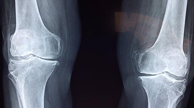 knees x-ray medical bone