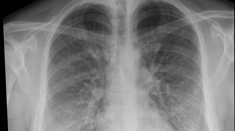 This chest x-ray of a patient being treated for e-cigarette or vaping-associated lung injury shows lung opacities, densities and whitish cloud-like areas which are typically seen with unusual pneumonias, fluid in lungs or lung inflammation. CREDIT Intermountain Healthcare