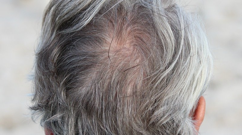 grey gray hair