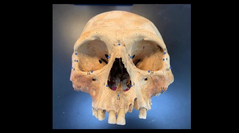 "Researchers analyzed the skulls of early Caribbean inhabitants, using 3D facial ""landmarks"" as a genetic proxy for determining how closely people groups were related to one another. CREDIT Ann Ross/North Carolina State University"
