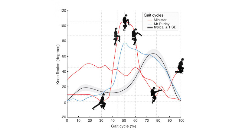 Monty Python's 'Ministry of Silly Walks': Comparison of two complete gait cycles of the Minister, one of Mr. Pudey and the mean curve for people without pathology. (Data source: Motion & Gait Analysis Laboratory, Lucile Packard Children's Hospital at Stanford). Left knee flexion in the sagittal plan of motion normalized to a single gait cycle. (Two gait cycles of the Minister are from the televised sketch, which premiered Sept. 15, 1970 and the live stage performance in Los Angeles, Calif, in Sept. 1980 [video source: the 1982 concert film Monty Python Live at the Hollywood Bowl]. Gait cycle of Mr. Pudey is from the original sketch). CREDIT Chart created by Erin E. Butler and Nathaniel J. Dominy.