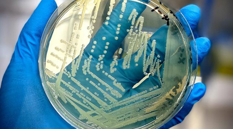 Salmonella cells proliferate in an agar plate. CREDIT Mars Global Food Safety Center