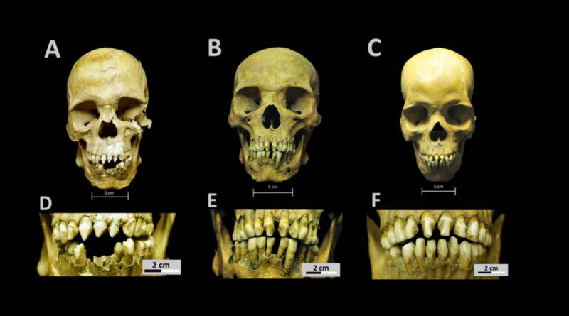 Skulls and dental decoration patterns for the three African individuals from the San José de los Naturales Royal Hospital. A. Skull from individual 150 (SJN001). B. Skull from individual 214 (SJN002). C. Skull from individual 296 (SJN003). D. Close-up of dental modification patterns for individual 150 (SJN001). E. Close-up of dental modification patterns for individual 214 (SJN002). F. Close-up of dental modification patterns for individual 296 (SJN003). CREDIT Collection of San José de los Naturales, Osteology Laboratory, (ENAH), Mexico City, Mexico. Photo: R. Barquera & N. Bernal.