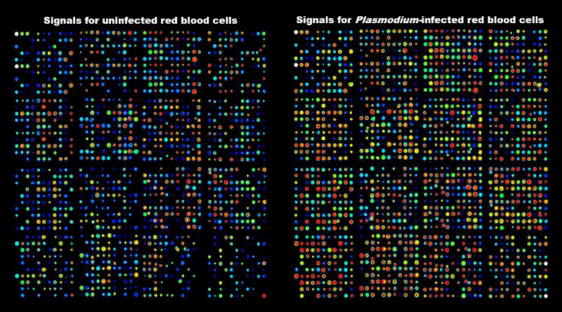 Antibody array data showing activation of kinases in human red blood cells infected with the malaria parasite. CREDIT: RMIT University