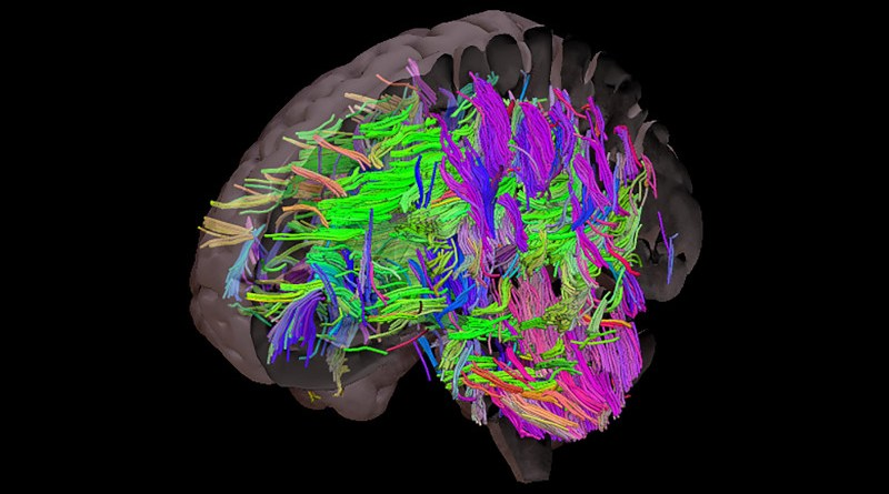 The brain with all the white matter tracts visible. White matter tracts are susceptible to damage in people with uncontrolled cardiovascular risks like obesity. CREDIT The University of Sheffield