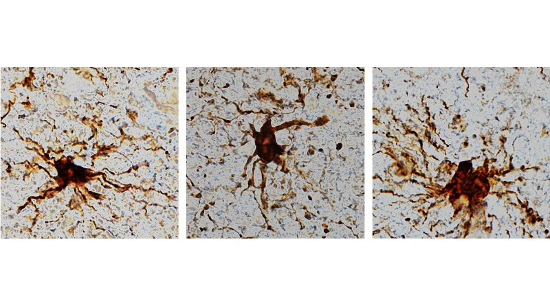 'Zombie' cells come to life after the death of the human brain. CREDIT Dr. Jeffrey Loeb/UIC