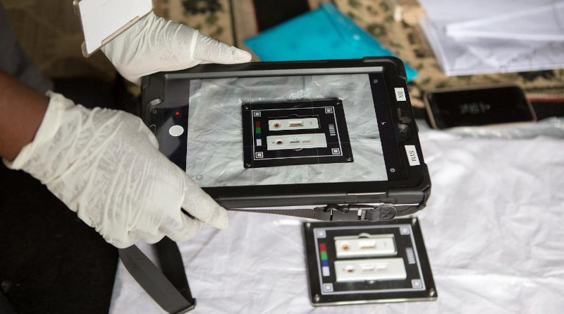 Through this work, they built a library of images of HIV tests taken in various conditions - which was used as training data for the UCL team's machine-learning algorithm. CREDIT Africa Health Research Institute