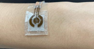 Penn State researchers developed a prototype of a wearable, noninvasive glucose sensor, shown here on the arm. CREDIT: Jia Zhu, Penn State