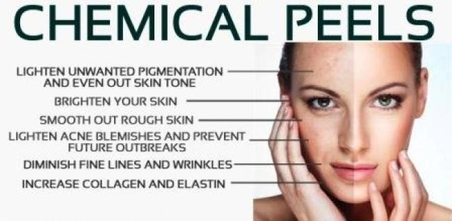 Medical Peels in Madison WI