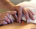 Nuestra fe: La acupuntura: por Dr. Carlos Etchevarne, Bach. Teol.