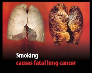 Smoking And The Risks