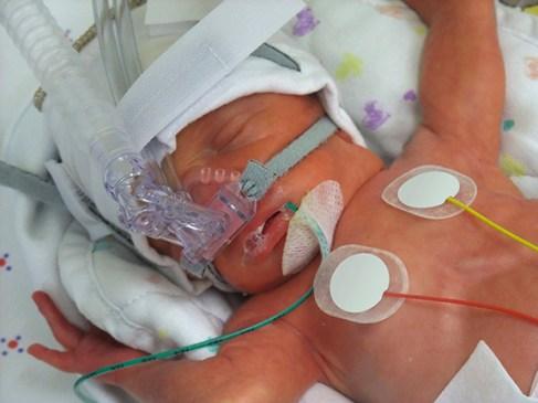 smoking-causes-premature-babies