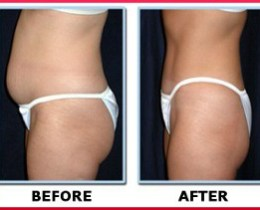 lady weight loss for flat tommy after GNLD Amitone supplemet product