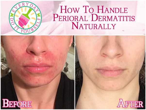 How to Handle Perioral Dermatitis Naturally