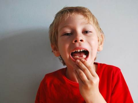 What To Do When the baby's teeth fall