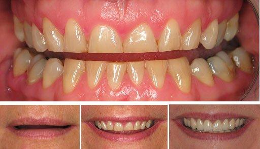 Attrition Evesham Dental Health Team