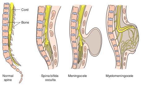 Image result for meningomyelocele vs meningocele