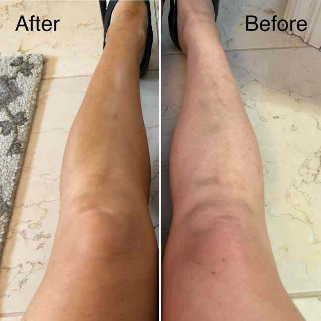 St. Tropez Self-Tanner Before and After