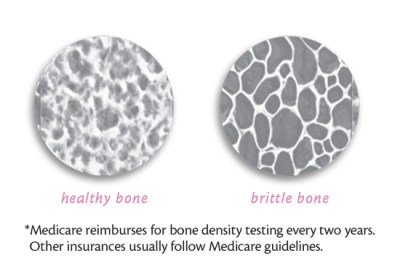 *Medicare reimburses for bone density testing every two years. Other insurances usually follow Medicare guidelines