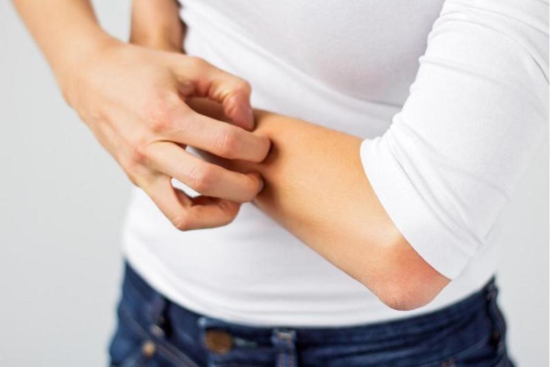 Za chronické kožní potíže mohou být zodpovědné toxiny. Zaměřte se na jejich vyloučení a pročistěte lymfu
