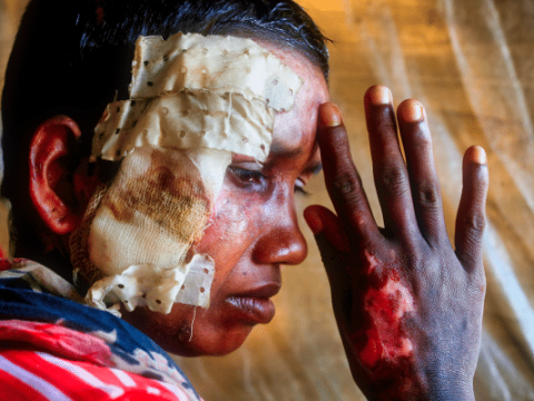 A Rohingya woman who says she was beaten and burned by soldiers in Myanmar in 2017. Photo: CNS/Reuter