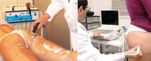 Radiofrecuencia para la celulitis