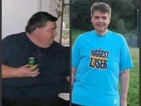 La obesidad será primera causa de mortalidad en este siglo
