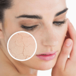 dry and scaly skin, moisturizer