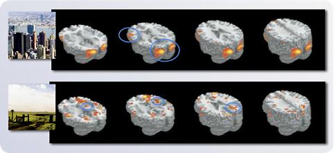 De positieve invloed van de natuur op het brein in beeld. Ook bij het kijken naar een afbeelding
