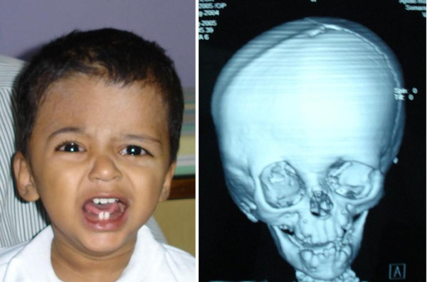 Right side coronal stenosis with Plagiocephaly. Root of nose deviated to Right. Right eye brow higher. Right Ear More Anterior and prominent. Right Malar more prominent