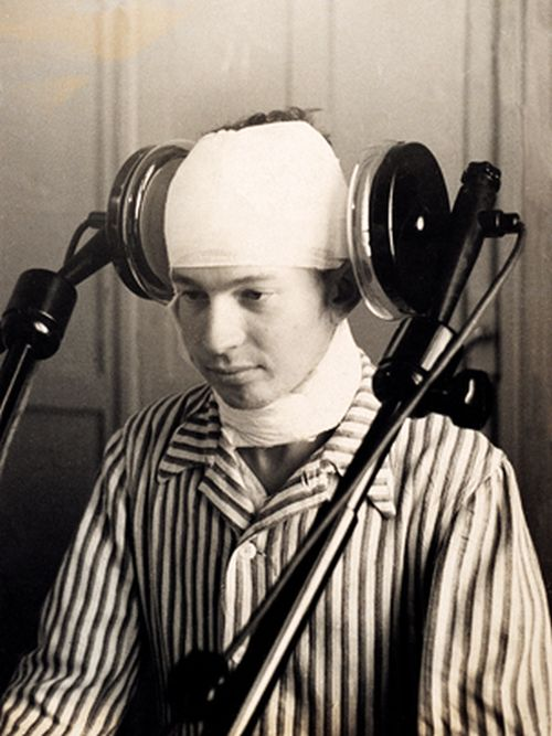 A patient undergoing lateral cerebral diathermia treatment in the early 1920