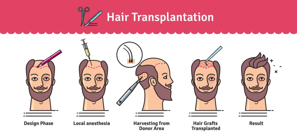 hair transplant diagram