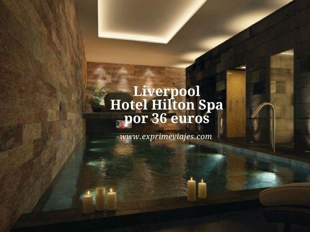 liverpool hotel hilton spa 36 euros