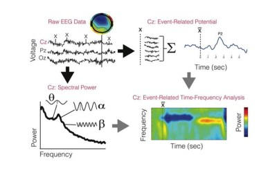 Use of EEG to diagnose ADHD