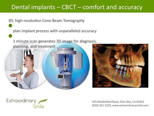 Palo Alto Digital Dental Implants