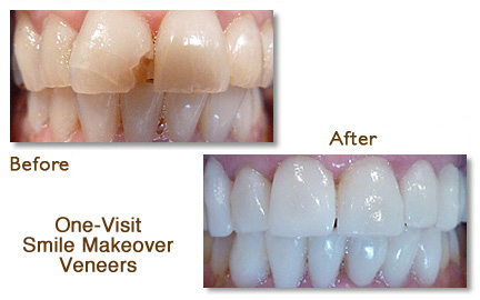 One-Visit Smile Makeover Porcelain Veneers Palo Alto