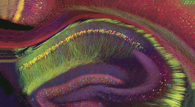 A view of the human hippocampus, with fluorescent proteins and confocal microscopy