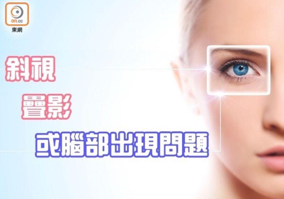 EyeCareHK 香港護眼 斜視疊影重重 或腦部出現問題