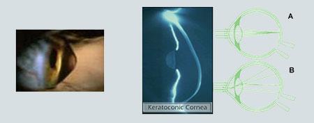 keratokonos-keratoconus-Κερατοκώνος