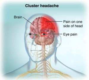 Anterior view of head, brain, nervous system showing areas of pain during a cluster headache; SOURCE: Screenshot from Cluster Headache Video; V1008