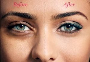 How to remove dark circles under your eyes overnight