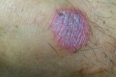 oval shaped dry patch of skin that is pink