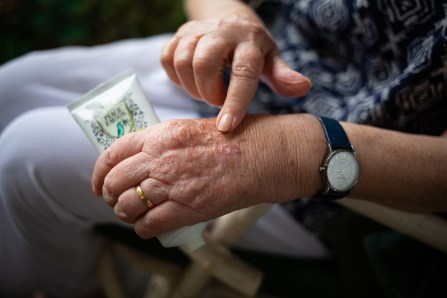 older womans hand with a finger pointing at her hand