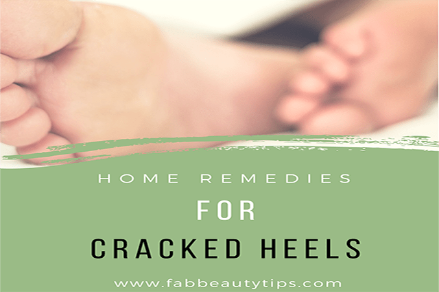 cracked Heels;home remedies for cracked feet; home remedies for cracked heels