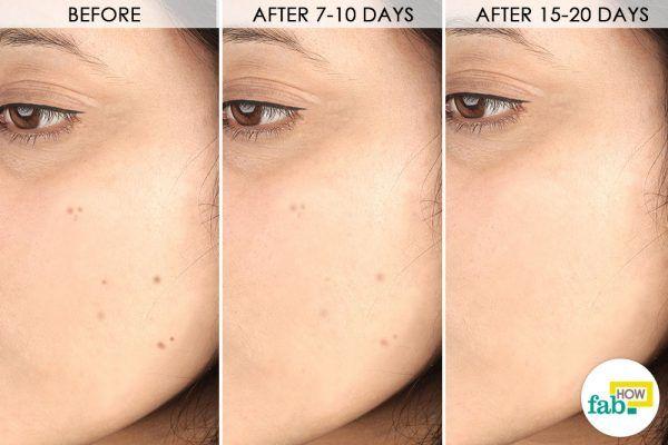 treat dark spots on face